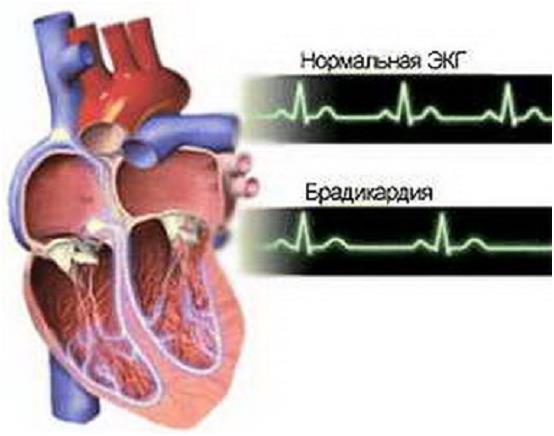 magas vérnyomású kardiogrammal