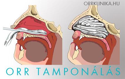 Orrvérzés: ezért nem mindegy, az orr melyik részéből ered!, Orrvérzés és magas vérnyomás