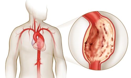hipodinámia magas vérnyomás