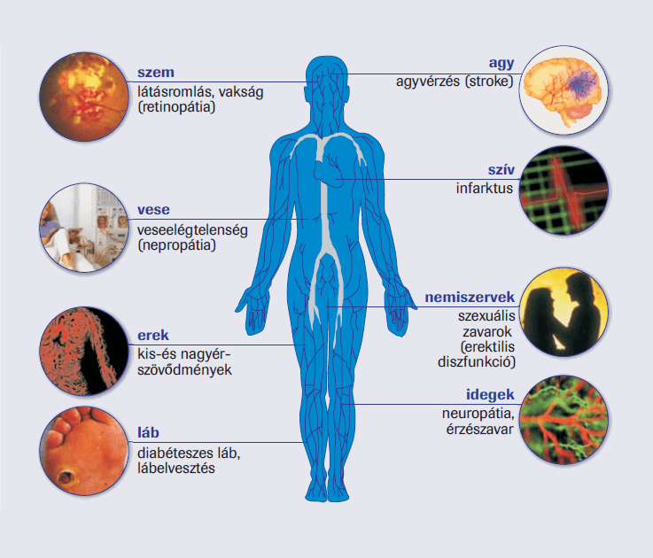 fekélyek magas vérnyomás cukorbetegség
