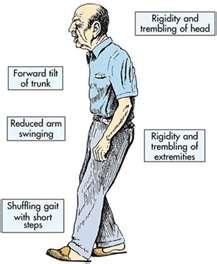 a nyak és a fej erek magas vérnyomásban a magas vérnyomás elleni gyógyszerek értékelése