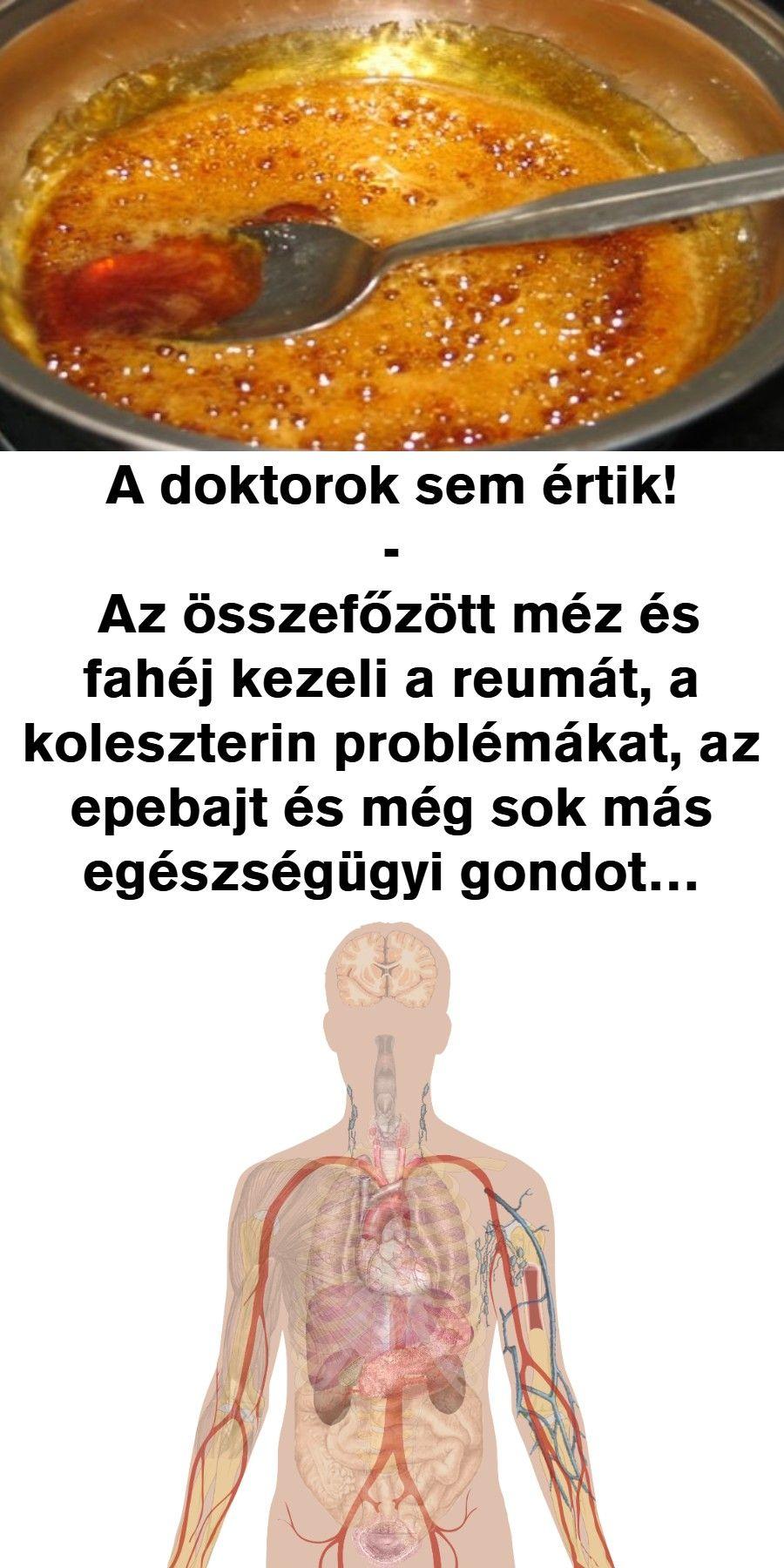 3 fokos magas vérnyomás)