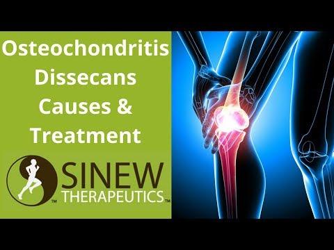 Mi a nyaki osteochondrozis, mi veszélyes és hogyan kell kezelni?
