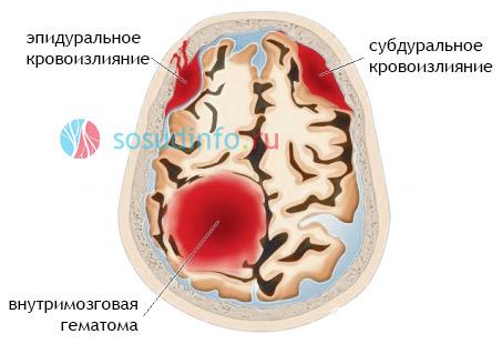 magas vérnyomás okozta agyi vérzés)