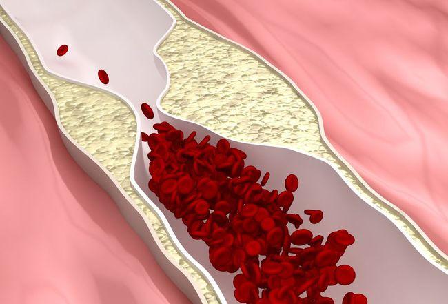 magas vérnyomásból lokren mi a 3 fokú magas vérnyomás 3 kockázata