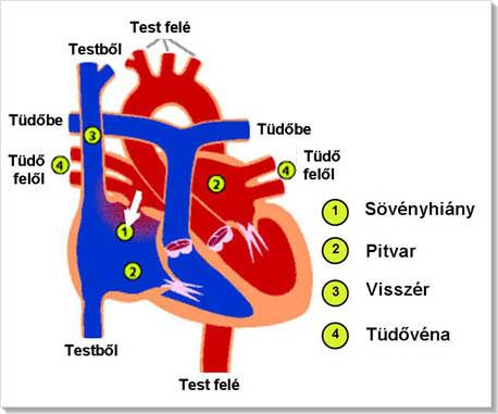 ASD 2 kezelés magas vérnyomás esetén
