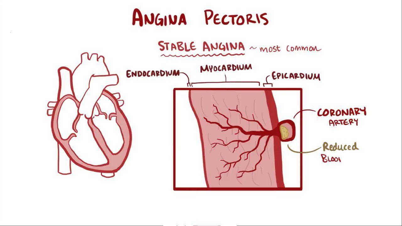 ischaemia angina pectoris magas vérnyomás