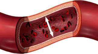 magas vérnyomás 3 stádiumú fogyatékosság)