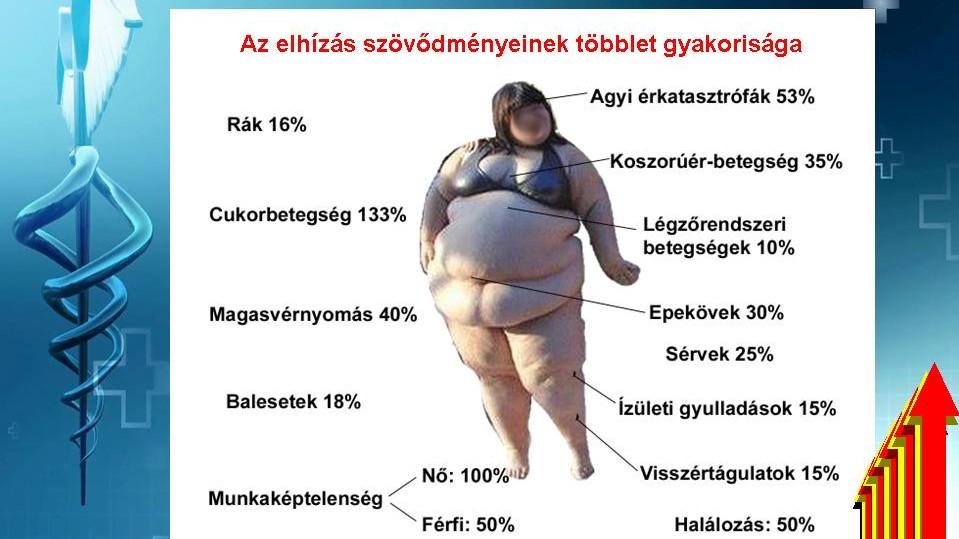 túlsúlyos, magas vérnyomásban