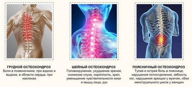 a nyaki hipertónia osteochondrosisában)