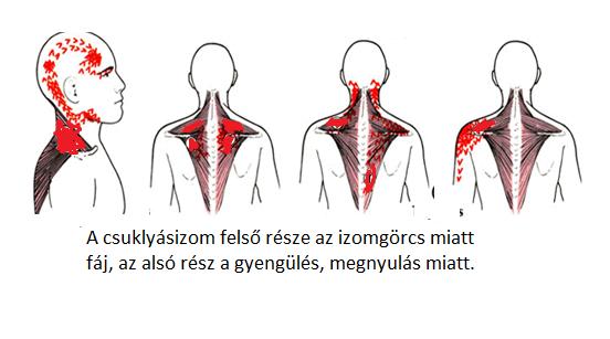 A nyaki gerincszakasszal kapcsolatos leggyakoribb problémák