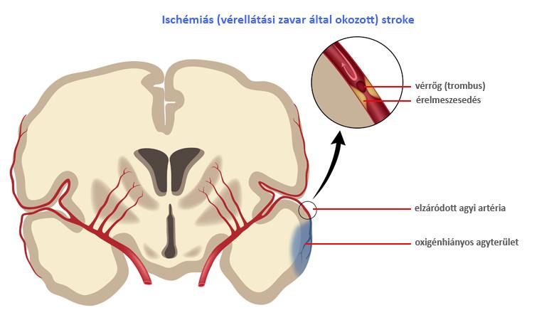hipertónia mutatói hipertóniás osteochondrosis gyakorlatok