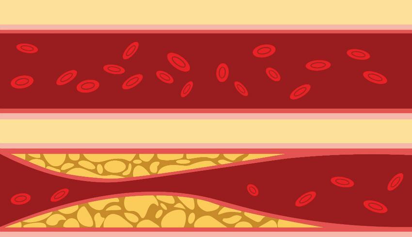 magas vérnyomás és a köteg elágazása