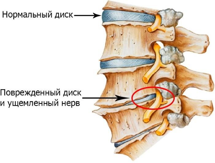 Érrendszeri gyógyszerek a nyaki osteochondrosishoz, Értágítók nyaki osteochondrosis