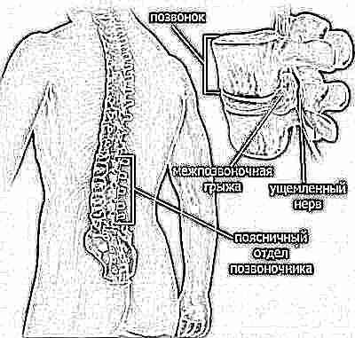 1 fokú hipertóniát diagnosztizáltak nálam