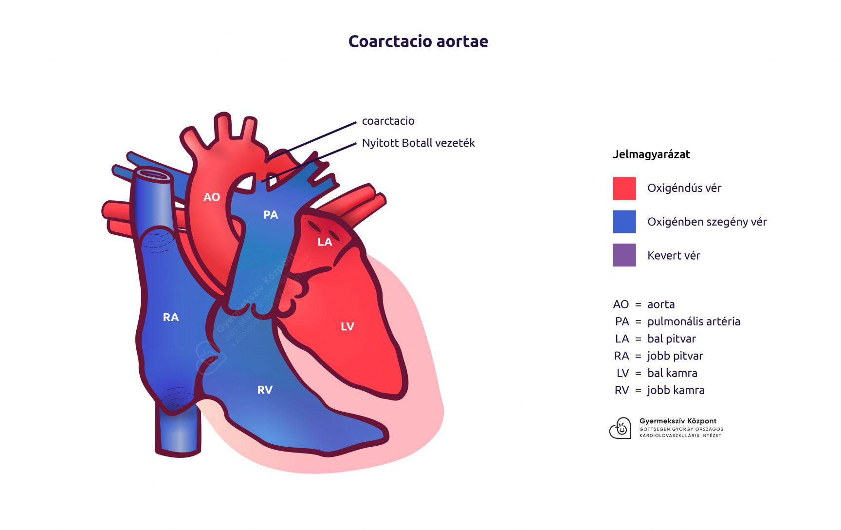 műtéti kezelések magas vérnyomás esetén)