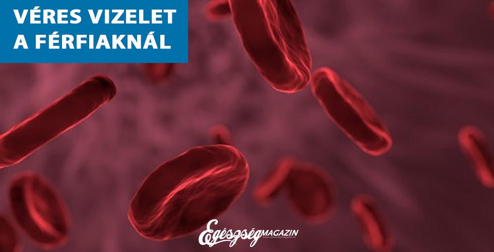 vér a vizeletben magas vérnyomás)