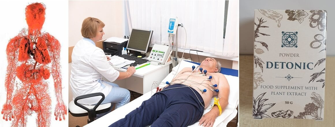 Sportolni magas vérnyomással is kell és lehet - EgészségKalauz