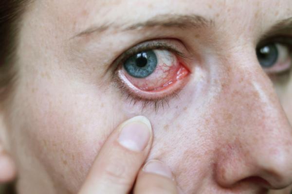 szem erek magas vérnyomás)