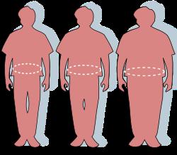az elhízás hipertóniájának következményei magas vérnyomás 1 fok 3