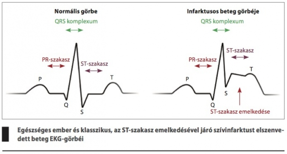 2 szakasz magas vérnyomással)