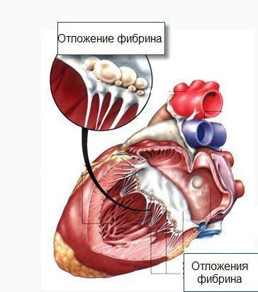 Vegetatív-érrendszeri dystonia ízületi fájdalom
