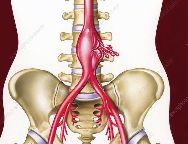mi a magas vérnyomás rosszindulatú formája d-dimer hipertónia