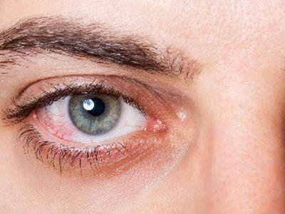 a szem erek magas vérnyomása