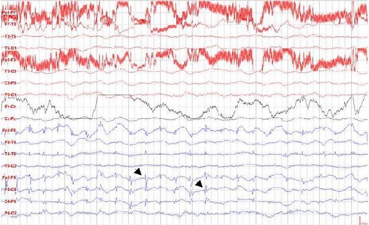 magas vérnyomás okozta vérszegénység magas vérnyomás 3 stádium 1 kockázat