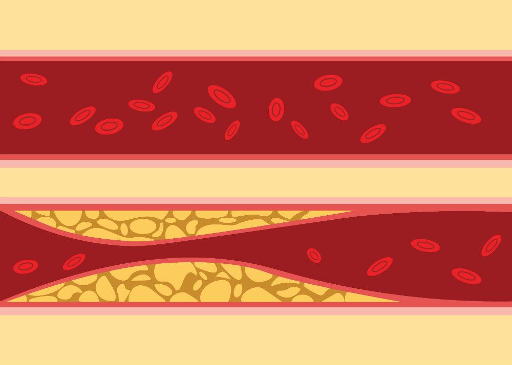 a magas vérnyomás elemzéseket okoz