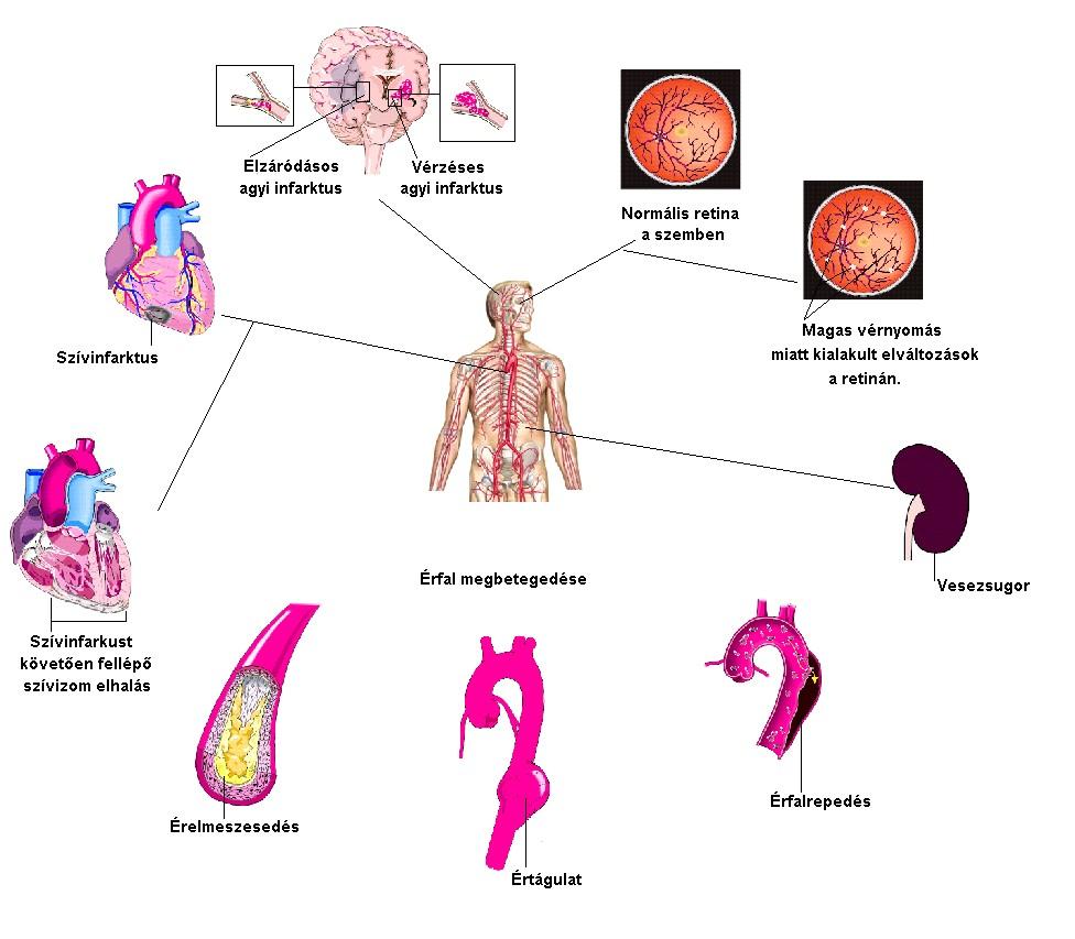 A magas vérnyomás WHO osztályozása)