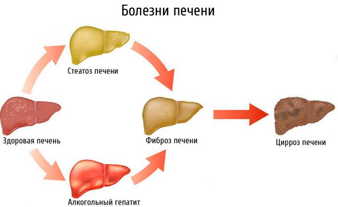aszténikus magas vérnyomás
