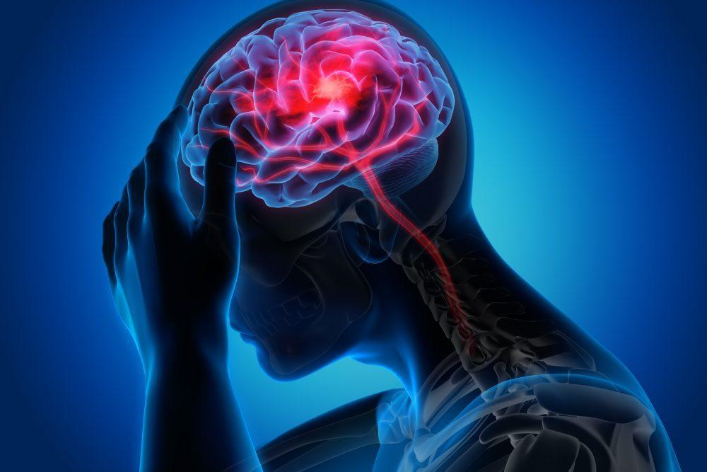 magas vérnyomású stroke