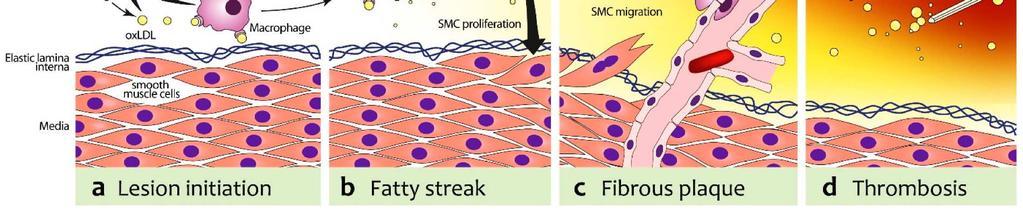 a vérkeringés következményeinek kis körében magas vérnyomás
