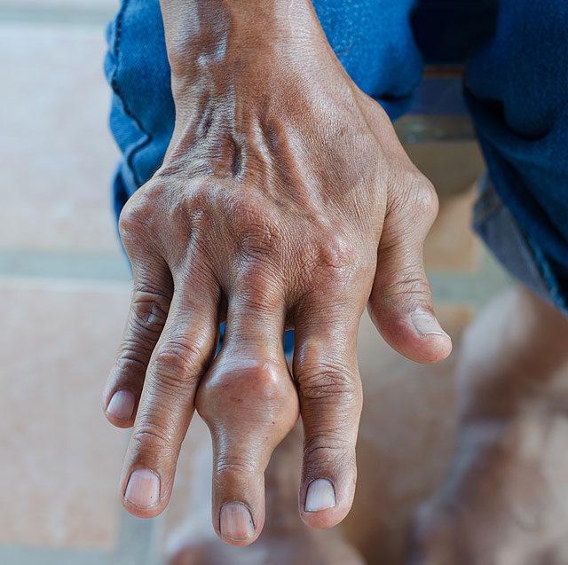 magas vérnyomás köszvény rosszindulatú magas vérnyomás gyakran fordul elő