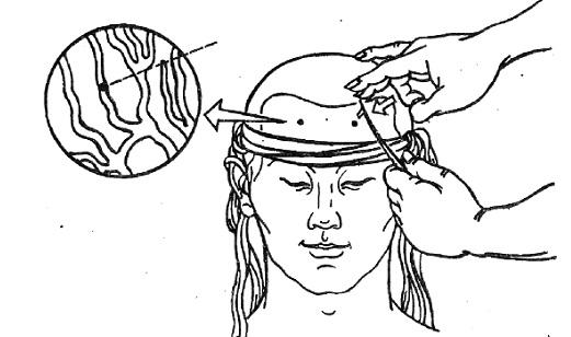 hidzsma hipertónia
