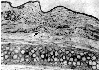 gallérmasszázs hipertónia