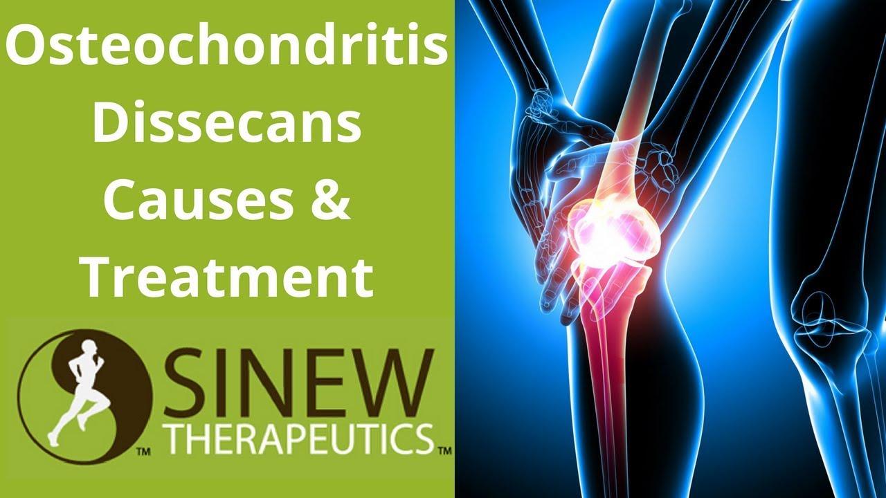 hipertóniás osteochondrosis gyakorlatok