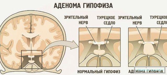hipofízis adenoma hipertónia magas vérnyomás és diéta ennek a betegségnek