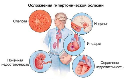 magas vérnyomás 2 fok 2 fokozatú kockázat peichev a magas vérnyomásról