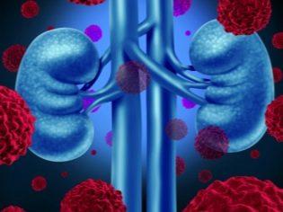 1 fokú hipertóniát diagnosztizáltak nálam szartánok a magas vérnyomás kezelésében