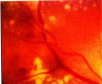 retinopathia hipertónia miatt