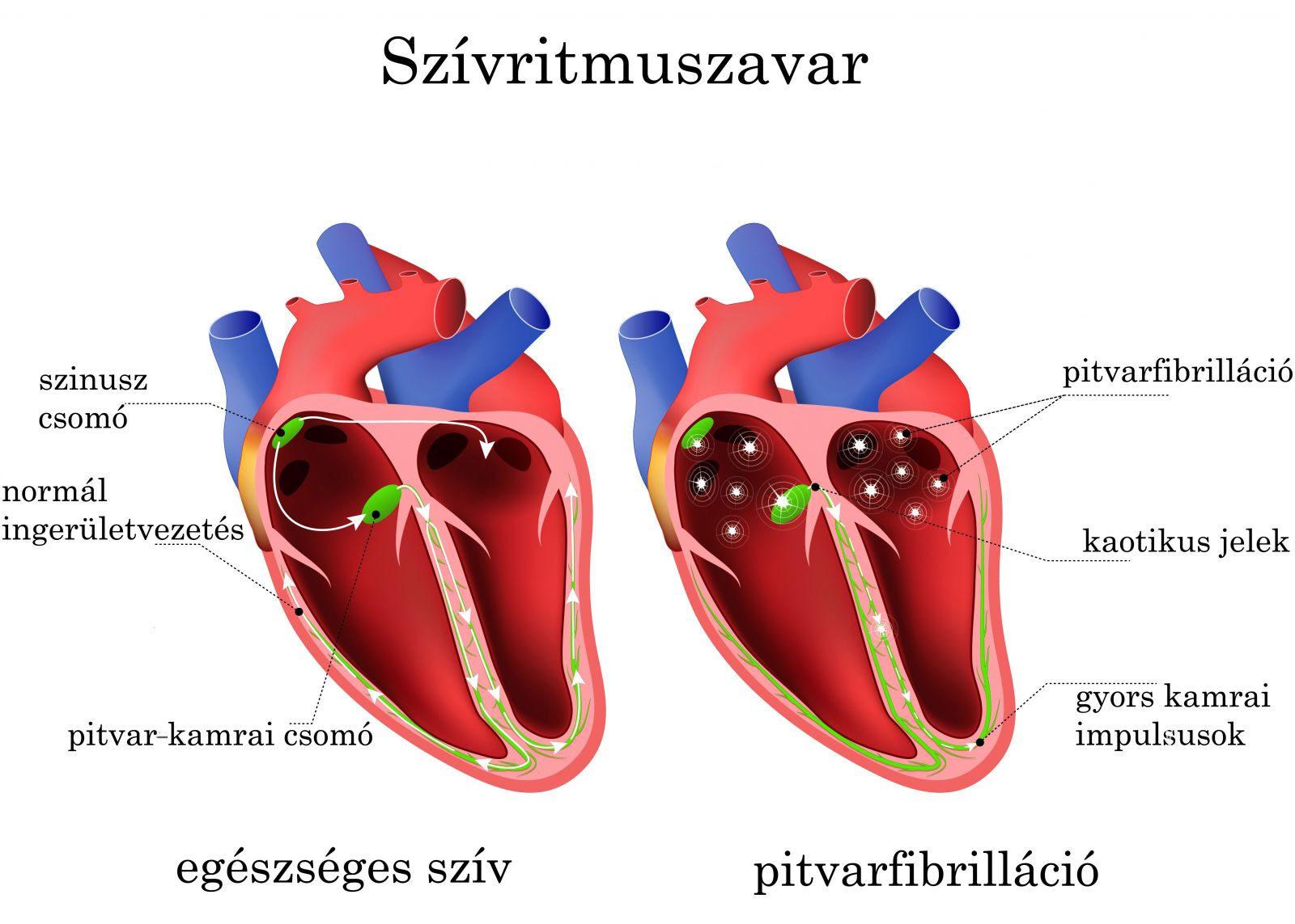 magas vérnyomás aritmia tachycardia a magas vérnyomás nyomásfeszültségei