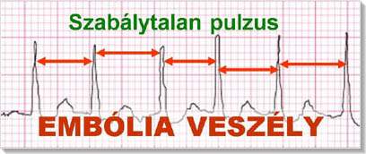 Szívritmuszavarok tünetei és kezelése