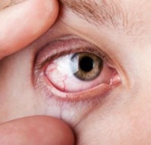 hipertónia szeme fotó