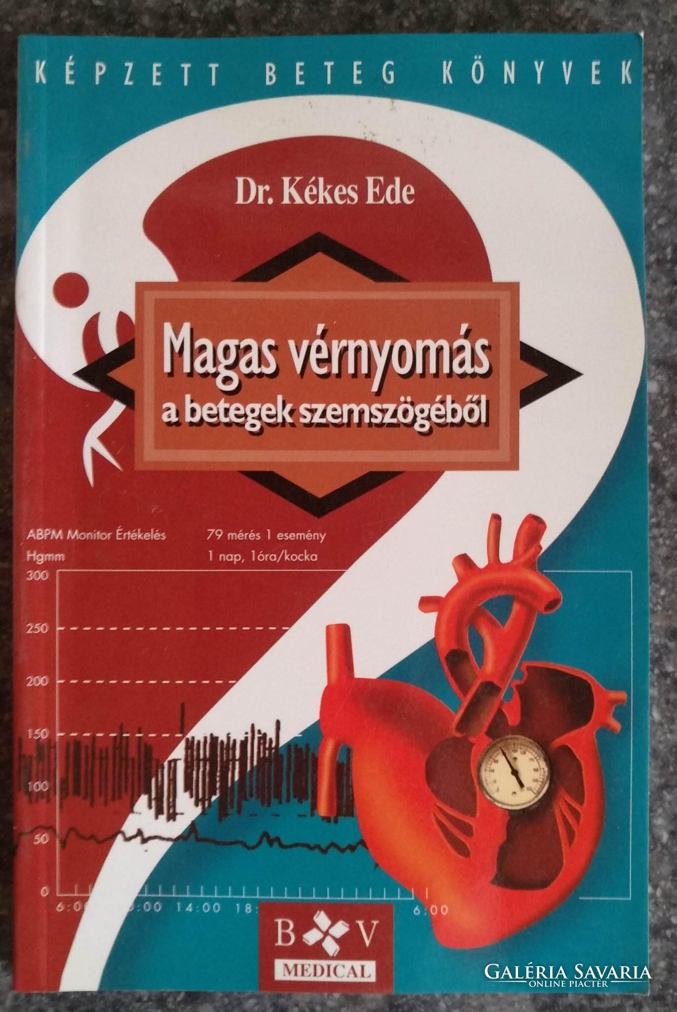 Magas vérnyomás a betegek szemszögéből · Kékes Ede · Könyv · Moly