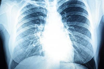 hogyan kell kezelni a pulmonalis hipertóniát