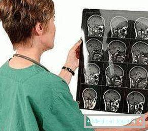 agyi ödéma magas vérnyomással vegetatív-vaszkuláris típusú magas vérnyomás