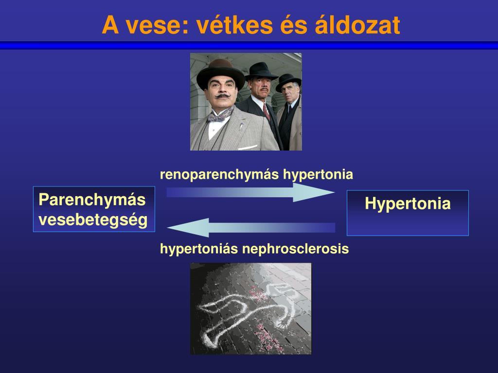 vese hipertónia az mcb szerint)