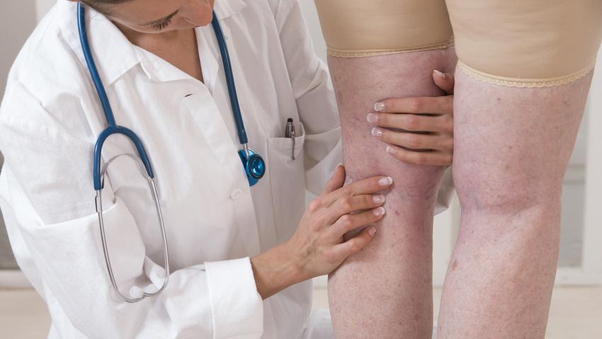 A visszértágulat tünetei és a leghatásosabb megoldások a kezelésére | BENU Gyógyszertárak